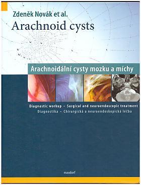 Zdeněk Novák – Arachnoid cysts - Arachnoidální cysty mozku a míchy
